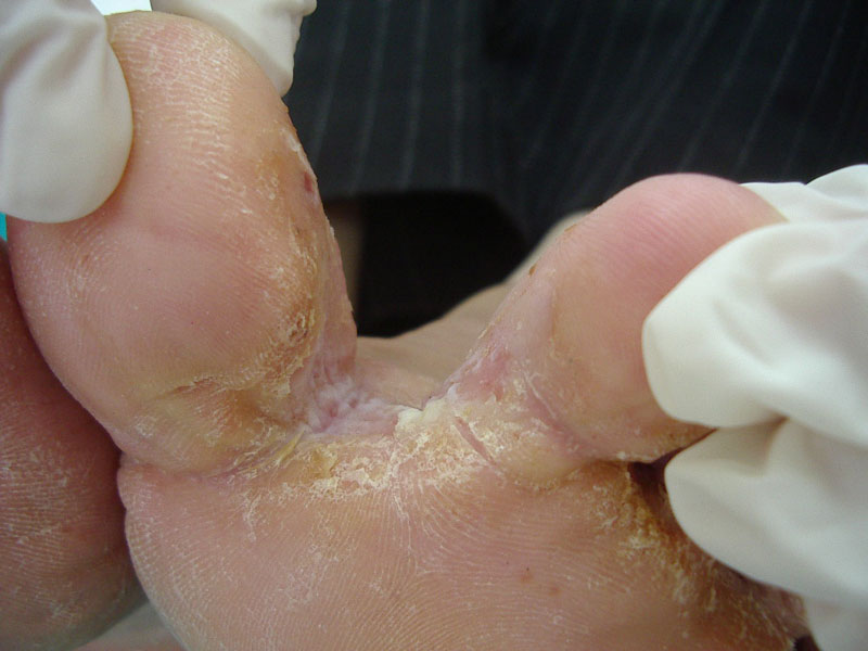 Tinea pedis - Feet Dermatophyte infection