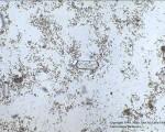 Triple Phosphate Crystals - Low power field