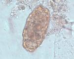 Ascaris lumbricoides unfertilized eggs