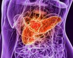 CA 19-9 Pancreas Cancer Tumor Marker
