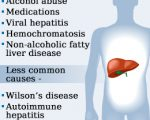 liver-diseases